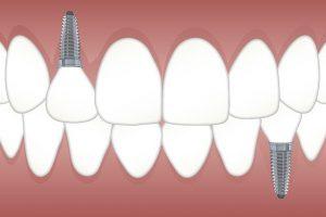 Implantes dentários, a melhor opção para quem perdeu um ou mais dentes.