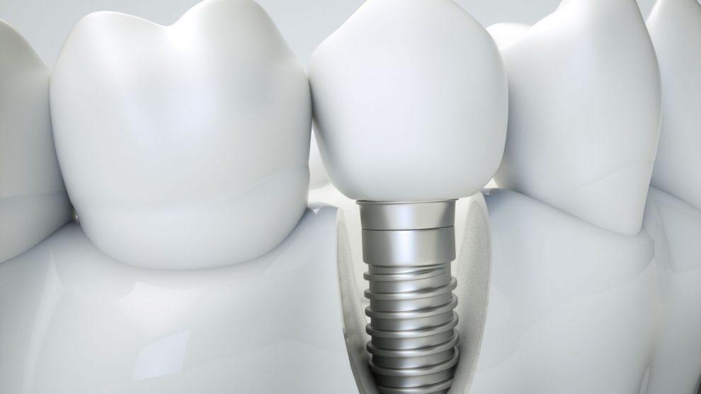 Saiba as principais vantagens de fazer um implante dentário