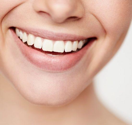 Conheça as Facetas Dentárias: técnica odontológica que faz sucesso entre as celebridades