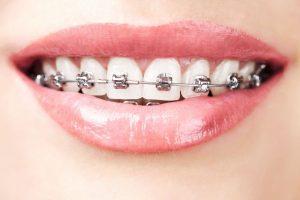 Aparelho dental: Como reduzir o incômodo após a colocação e ajustes