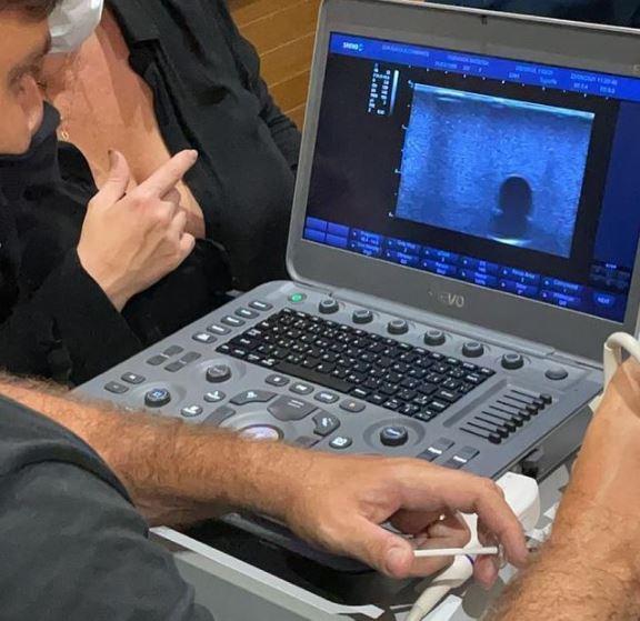 Saiba como a ultrassonografia pode auxiliar a Harmonização Facial na resolução de intercorrências