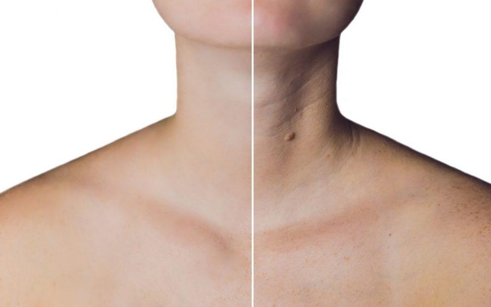 Botox no pescoço? Dra Paula Ahmed explica como funciona e quais as finalidades do procedimento