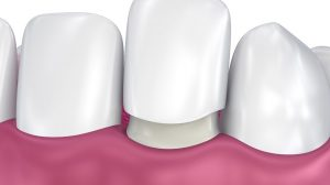 O que você precisa saber sobre facetas de porcelana e lentes de contato?